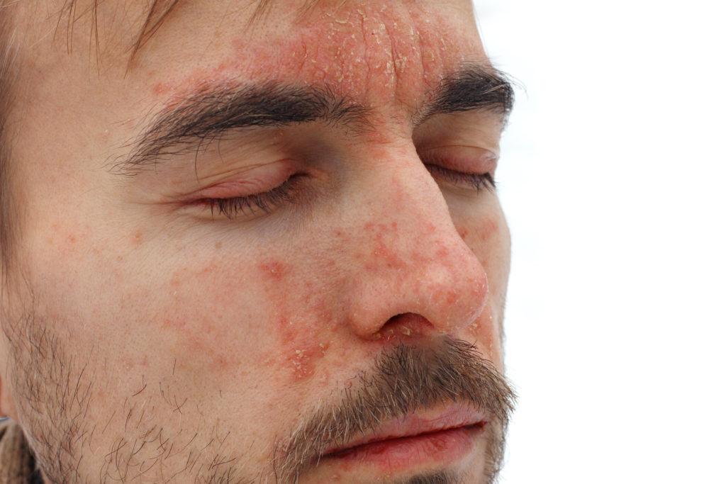 seborrheás dermatitis a péniszen)