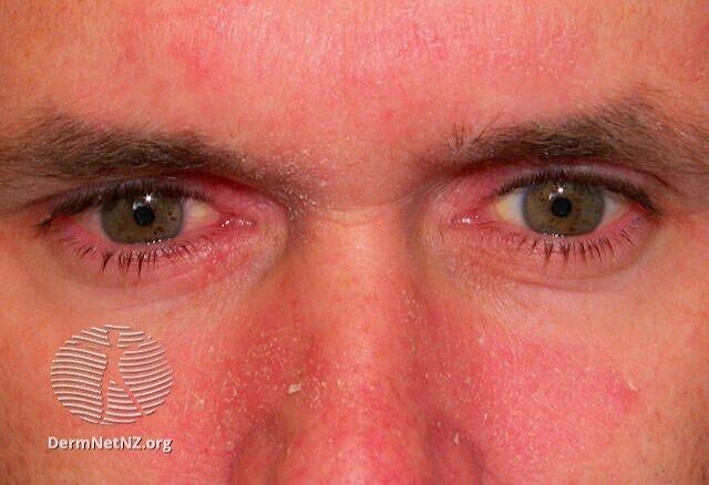 hámló és vörös bőrfoltok az arcon)
