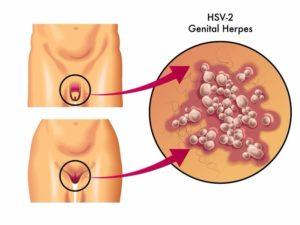 nemi betegségek férfiaknál képek infúzió amikor krónikus prosztatitis